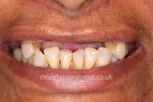 Manchester dental teeth in a day before