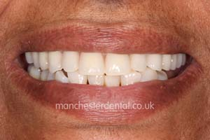 Manchester dental teeth in a day after