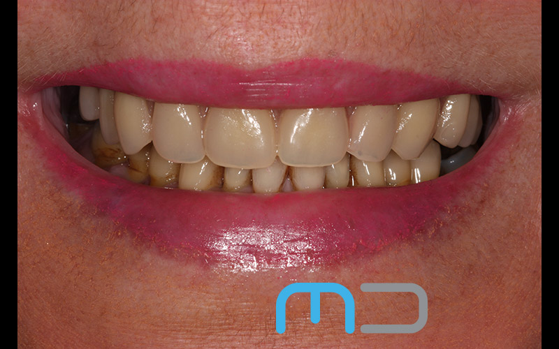 same day implants in manchester