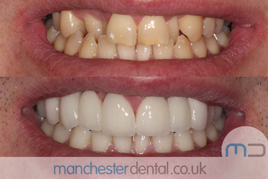 teeth whitening in Manchester