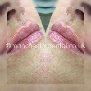 lip fillers (2)