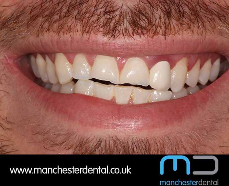 Smile Makeover 1 (After) 0000 www.manchesterdental.co.uk