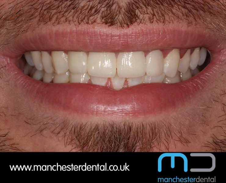 Smile Makeover 1 (After) 0001 www.manchesterdental.co.uk copy 2