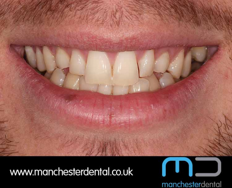 Smile Makeover 1 (After) 0002 www.manchesterdental.co.uk copy