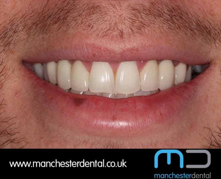 Smile Makeover 1 (After) 0003 www.manchesterdental.co.uk copy 4