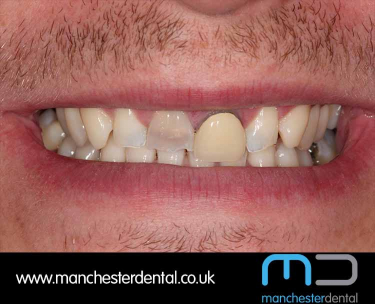 Smile Makeover 1 (After) 0004 www.manchesterdental.co.uk copy 3