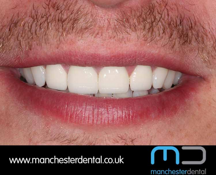 Smile Makeover 1 (After) 0005 www.manchesterdental.co.uk copy 5
