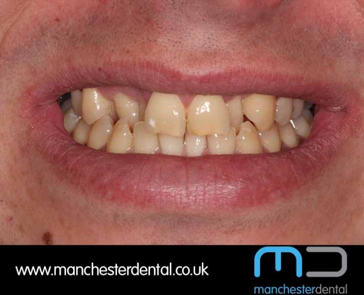 Smile Makeover 1 (After) 0006 www.manchesterdental.co.uk copy 6
