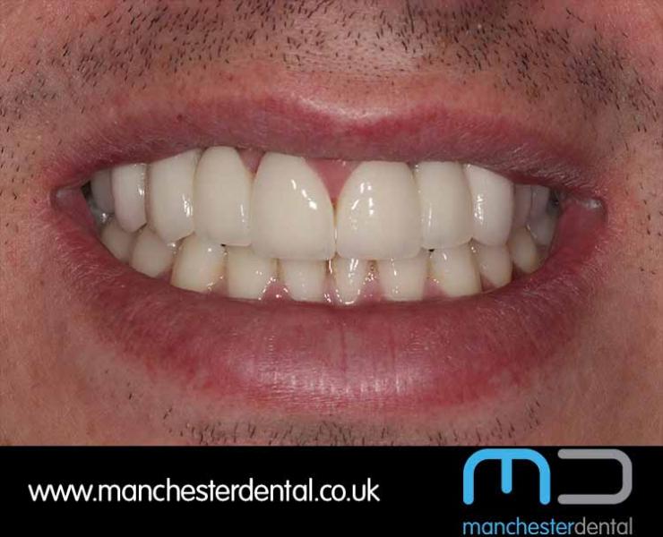 Smile Makeover 1 (After) 0007 www.manchesterdental.co.uk copy 7