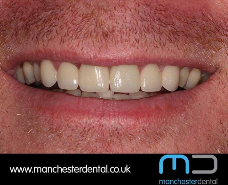 Smile Makeover 1 (After) 0009 www.manchesterdental.co.uk copy 9