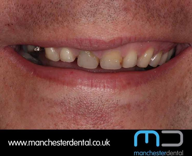 Smile Makeover 1 (After) 0010 www.manchesterdental.co.uk copy 10