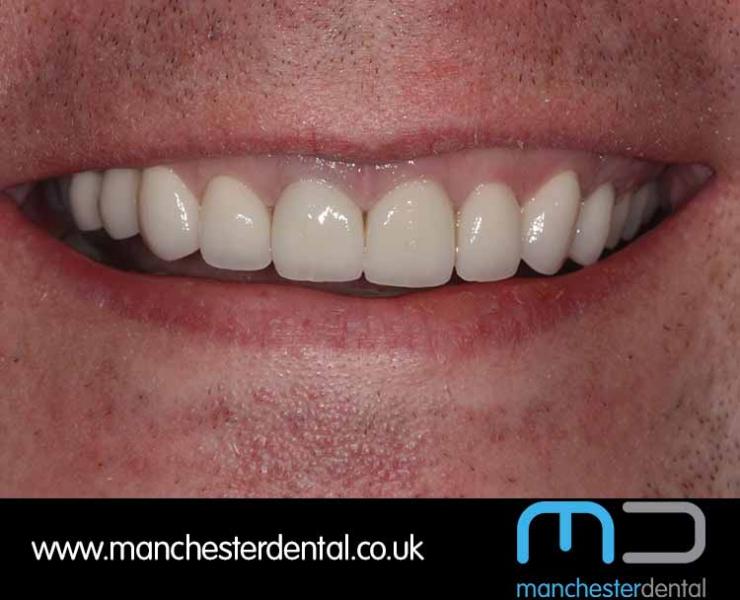 Smile Makeover 1 (After) 0011 www.manchesterdental.co.uk copy 12