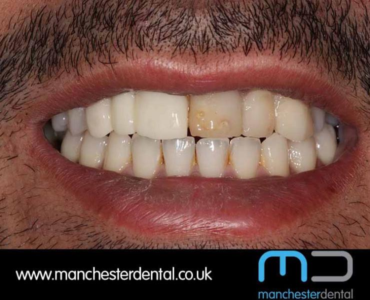 Smile Makeover 1 (After) 0012 www.manchesterdental.co.uk copy 11
