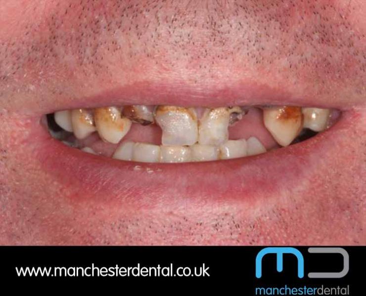 Smile Makeover 1 (After) 0016 www.manchesterdental.co.uk copy 16