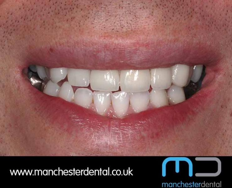 Smile Makeover 1 (After) 0019 www.manchesterdental.co.uk copy 19