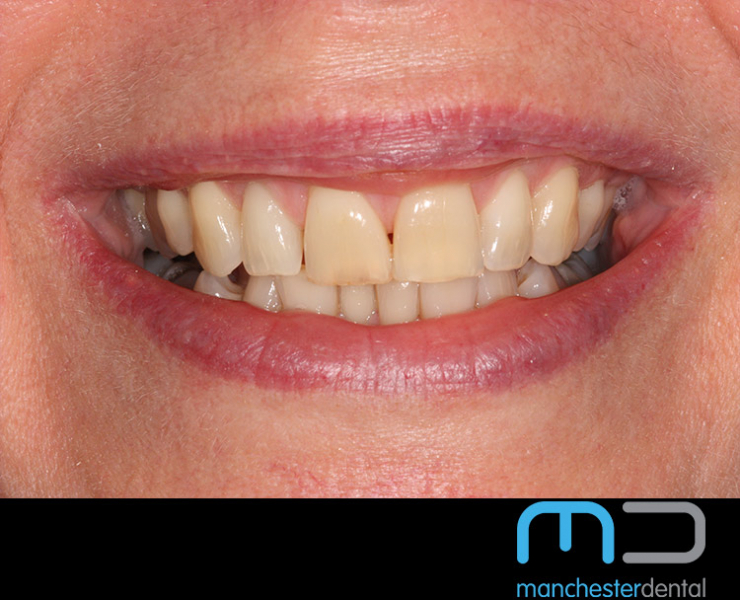 Teeth Whitening Manchester
