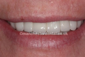 dental implants after - Copy