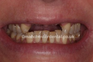 dental implants before - Copy