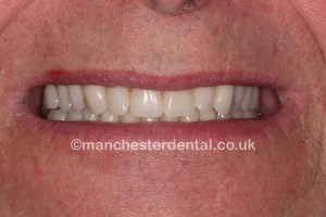 implants 5 denture on implants