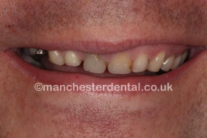 smile makeover & whitening before - Copy