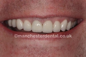 smile makeover & whitening after - Copy