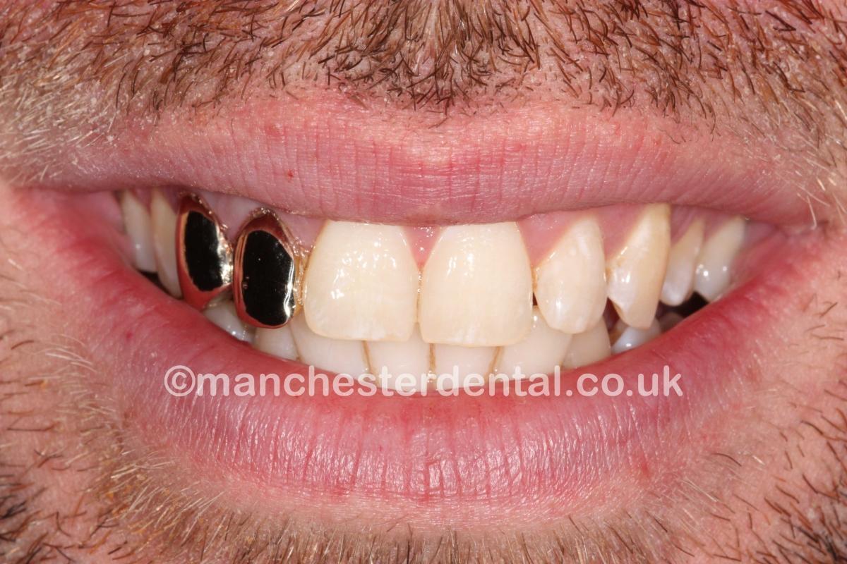 Gold Caps On Teeth