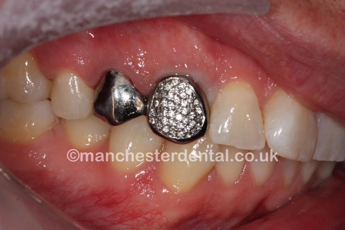 Gold Teeth / Gold Crowns - Manchester Dental