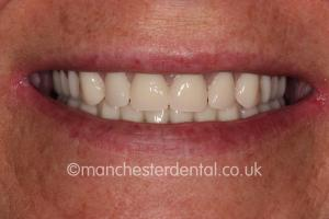 Manchester Dental Smile of the Month After