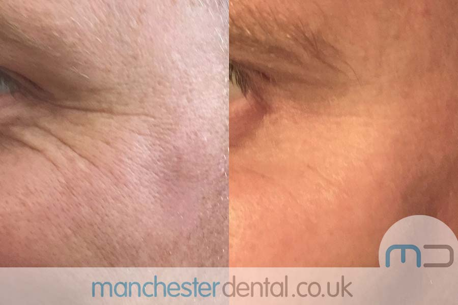 anti wrinkle treatment in manchester
