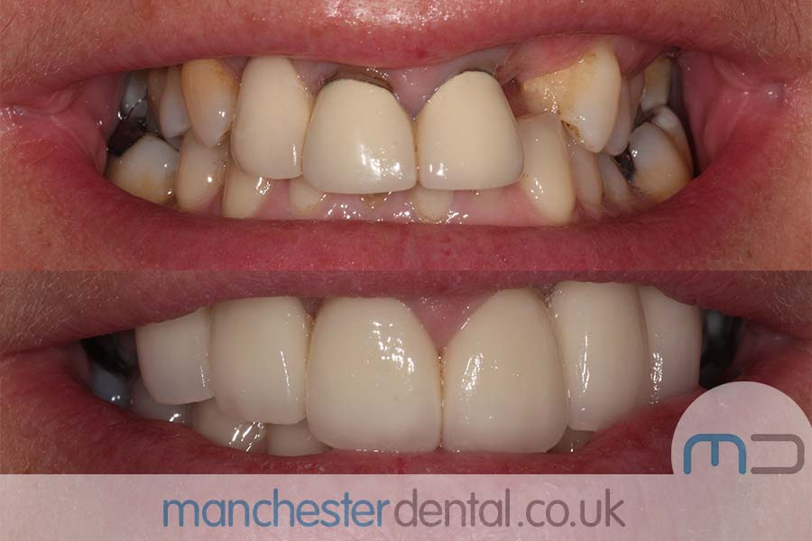 crowns and veneers in manchester