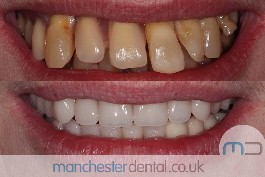 dental implants manchester