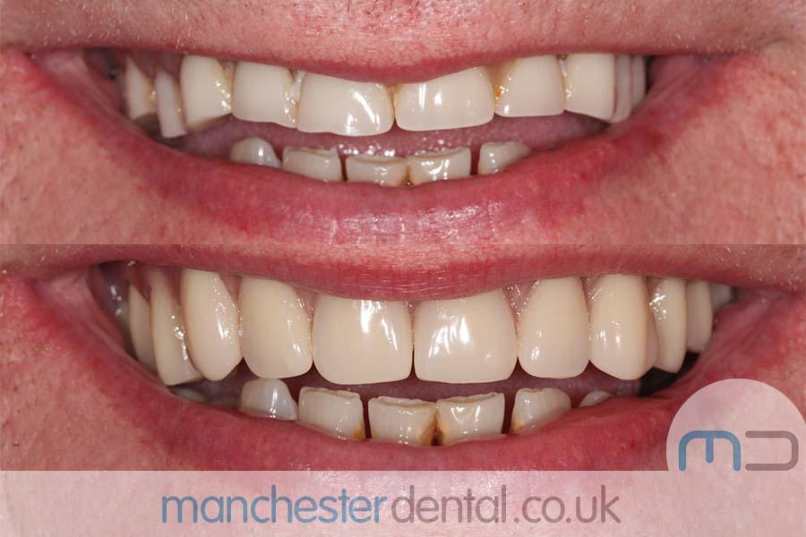 dentures in manchester