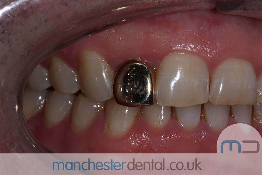 Gold Teeth Manchester