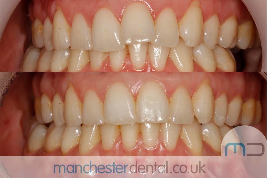 orthodontics manchester