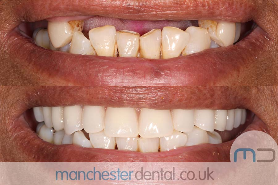 same day implants manchester
