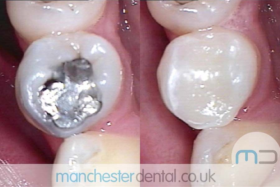 white fillings in manchester