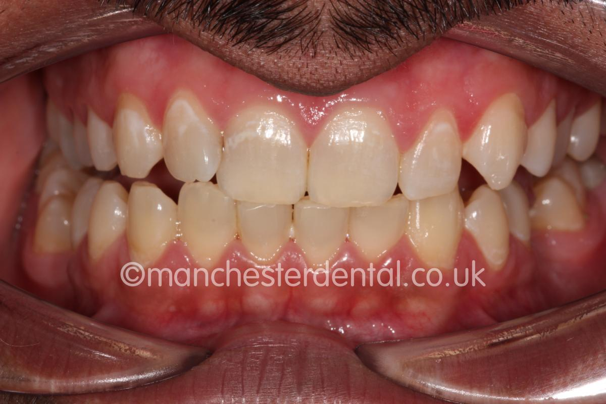 Gold Teeth / Gold Crowns - Manchester Dental
