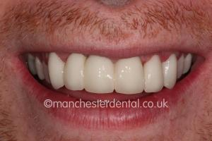 crowns veneers