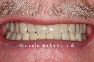 crowns veneers new smile