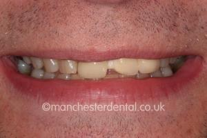 dental bridges manchester