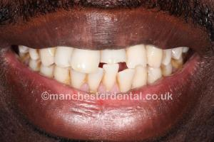 gold tooth before
