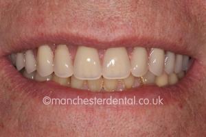 same day implants teeth