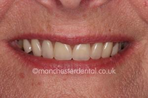 teeth implants manchester