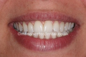 whitening 2 after